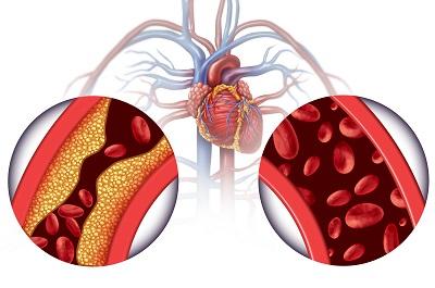 高血压前兆的6个表现 有这些症状要注意