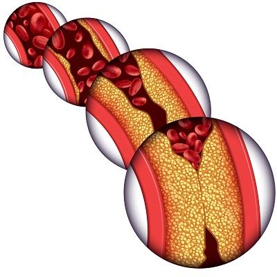 降血脂的食物和水果 四种水果食物可常吃